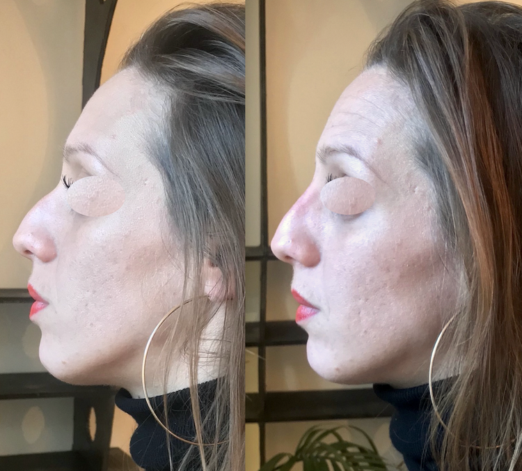 Embellir votre nez pour le rendre plus beau, plus joli, mieux proportionné   par technique non invasive au fauteuil, sans hospitalisation ni bleus ni oedème avec résultat 12 à 18 mois en harmonie avec le reste du visage pour supprimer, faire disparaitre,