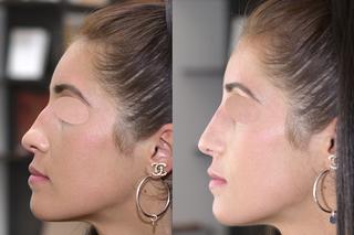 Embellir votre nez pour le rendre plus beau, plus joli, mieux proportionné   par technique non invasive au fauteuil, sans hospitalisation ni bleus ni œdème avec résultat 12 à 18 mois en harmonie avec le reste du visage pour supprimer, faire disparaitre, a