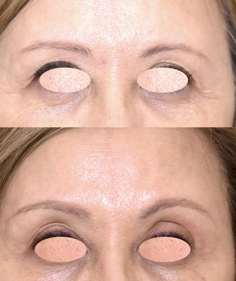 La Toxine botulique (Botox, Azzalure, Bocouture, Vistabel Allergan) est le produit phare de la médecine esthétique mais aussi en chirurgie esthétique. Les Injections sont destinées à la lutte contre les rides et les traces du vieillissement comme tendre l