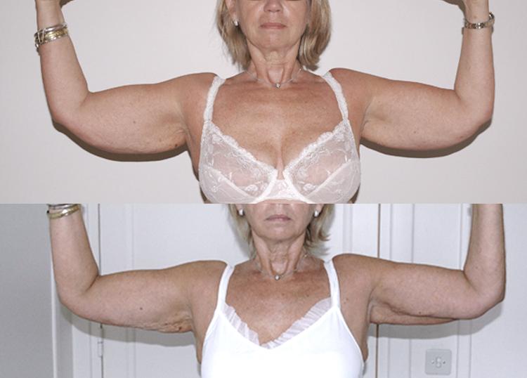 faut-il panty, gaine, vêtement de compression, pendant combien de temps, indispensable ou non.