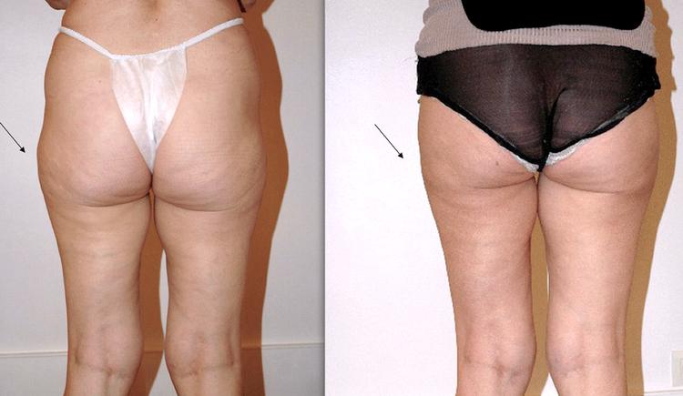 Beaucoup de question sur ce sujet de chirurgie et de médecine esthétique pour les hommes comme pour les femmes : C'est quoi la liposuccion, c'est quoi la lipoaspiration, est-ce méthode naturelle et peu invasive, douce. Pourquoi faire une liposuccion, Qu'e