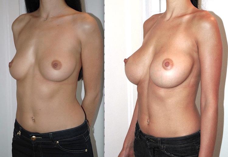 Chirurgie esthétique embellissement et rajeunissement poitrine