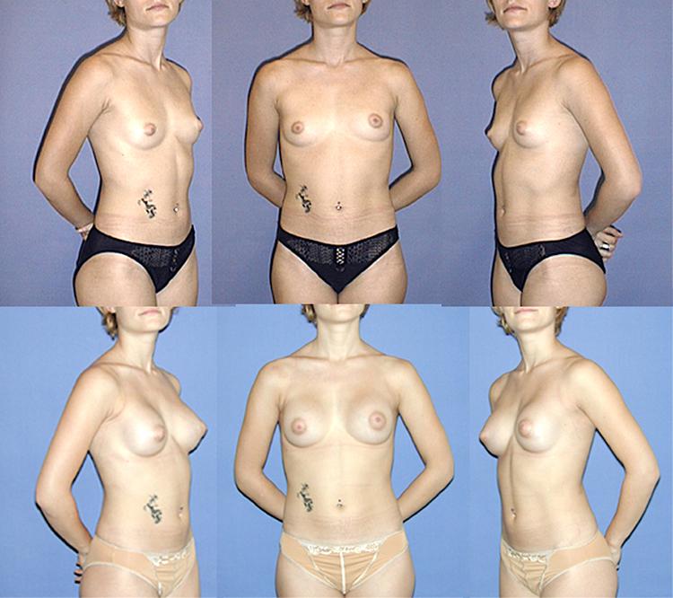 augmentation mammaire et allaitement,