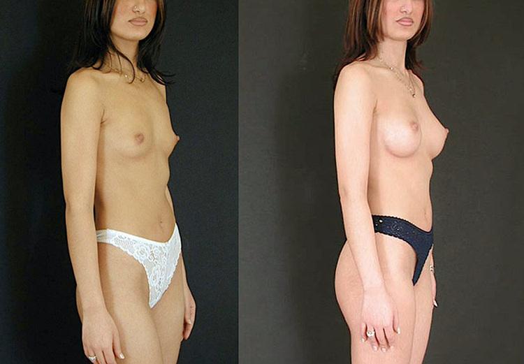 implant mammaire youtube, youtube augmentation mammaire témoignage, augmentation mammaire cicatrice douloureuse,