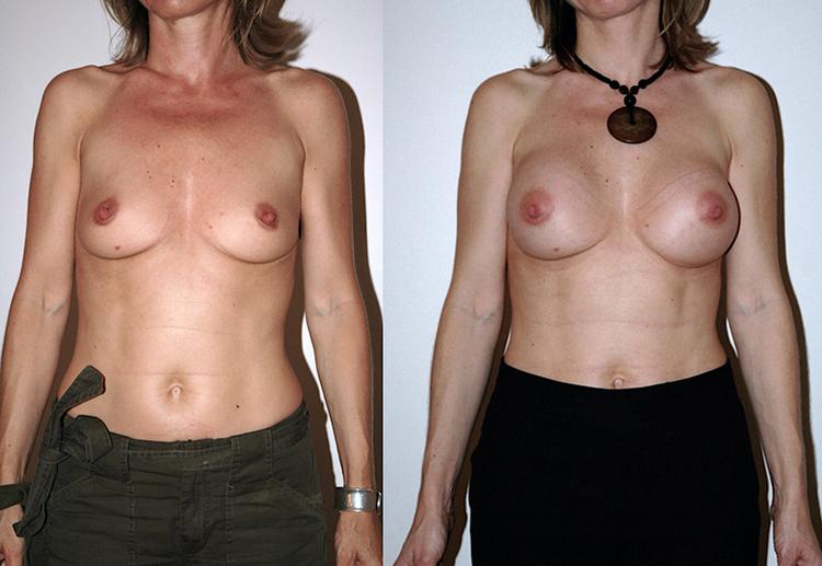 augmentation mammaire quelle taille choisir, augmentation mammaire quelle technique,
