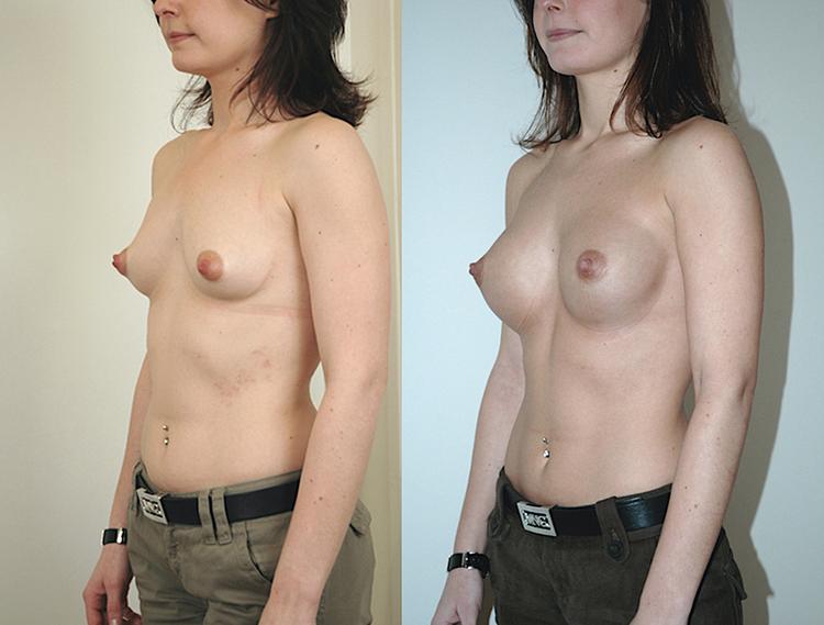 augmentation mammaire sous muscle, augmentation mammaire sans chirurgie avis, augmentation mammaire tarif,