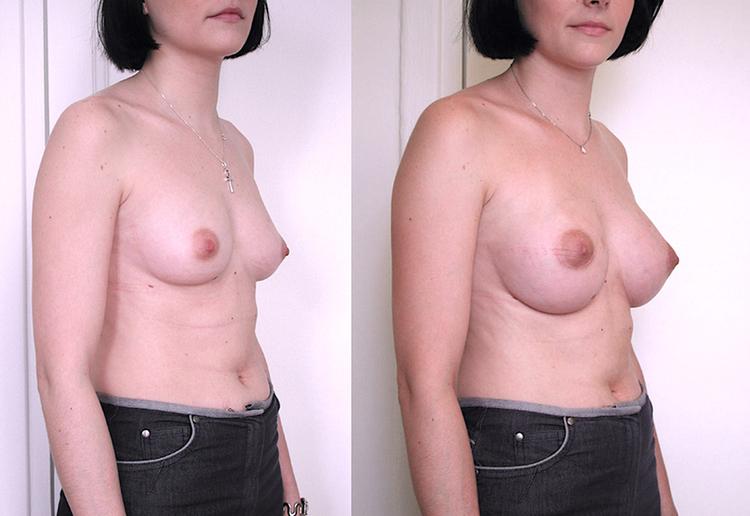 augmentation mammaire hypoplasie,