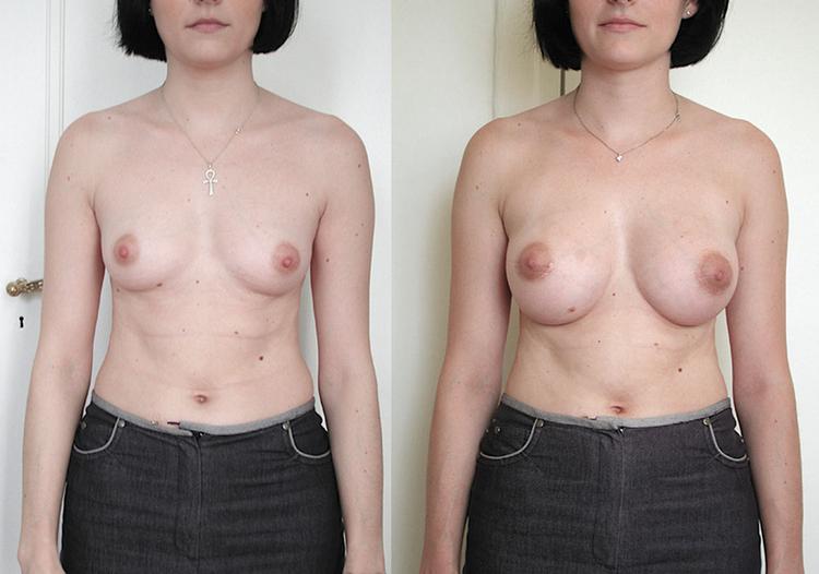 augmentation mammaire video, augmentation mammaire vergeture, augmentation mammaire remboursement,