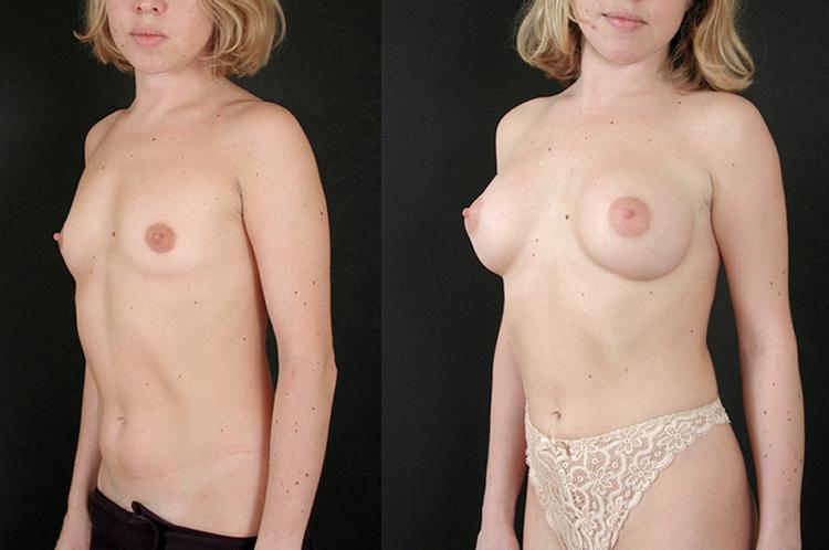 augmentation mammaire implant, augmentation mammaire graisse augmentation mammaire graisse avant apres,