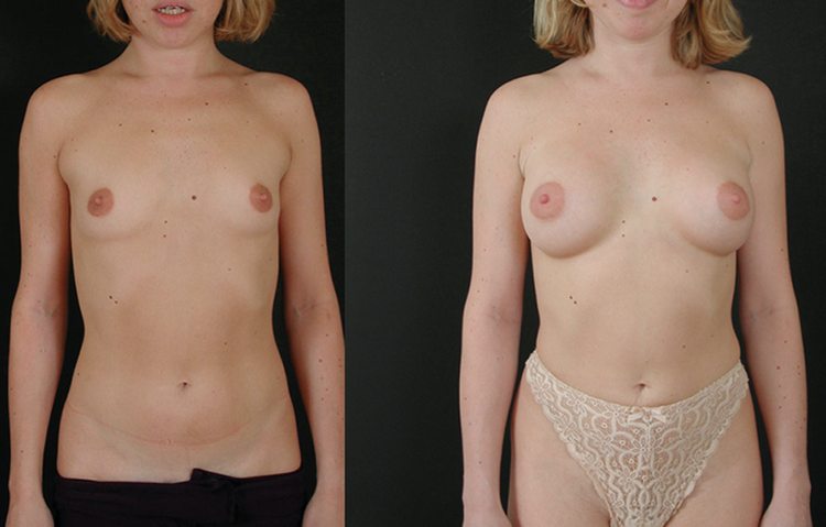 augmentation mammaire forme poire, augmentation mammaire injection,
