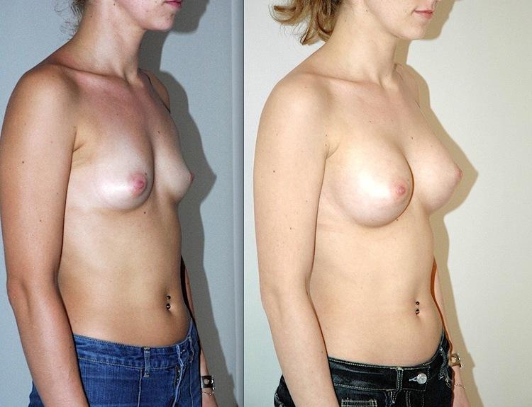 augmentation mammaire avis, augmentation mammaire anatomique, augmentation mammaire allaitement, augmentation mammaire acide hyaluronique avis, augmentation mammaire anesthésie locale, augmentation mammaire France,
