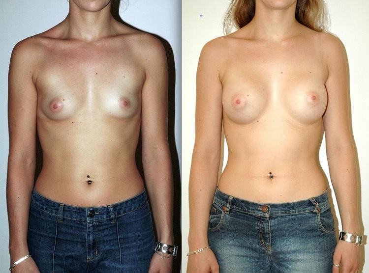 augmentation mammaire bonnet d, augmentation mammaire bonnet e, augmentation mammaire bonnet b a c, augmentation mammaire avant apres,