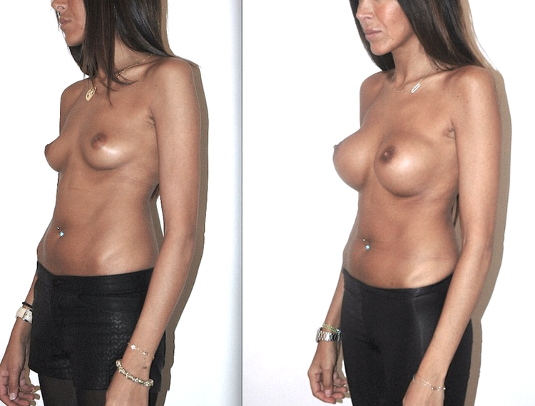 augmentation mammaire douleur, augmentation mammaire douleur 1 an après, augmentation mammaire dual plan, augmentation mammaire douleur combien de temps,