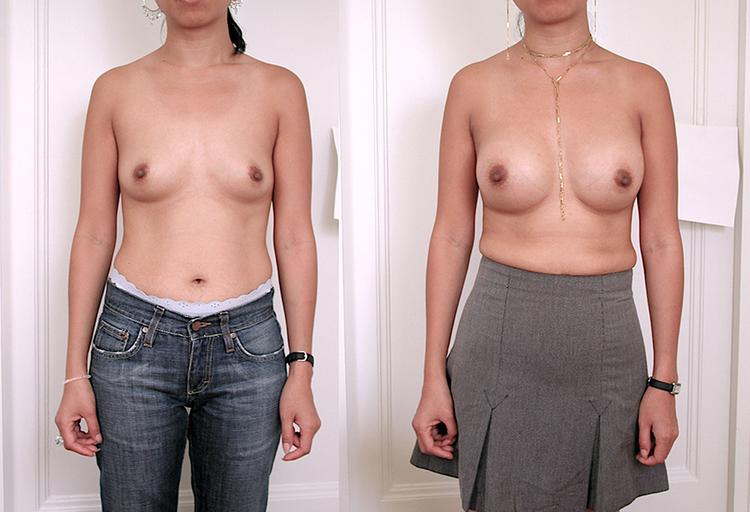 augmentation mammaire, augmentation mammaire explication, augmentation mammaire information, augmentation mammaire exemple, augmentation mammaire a vie,