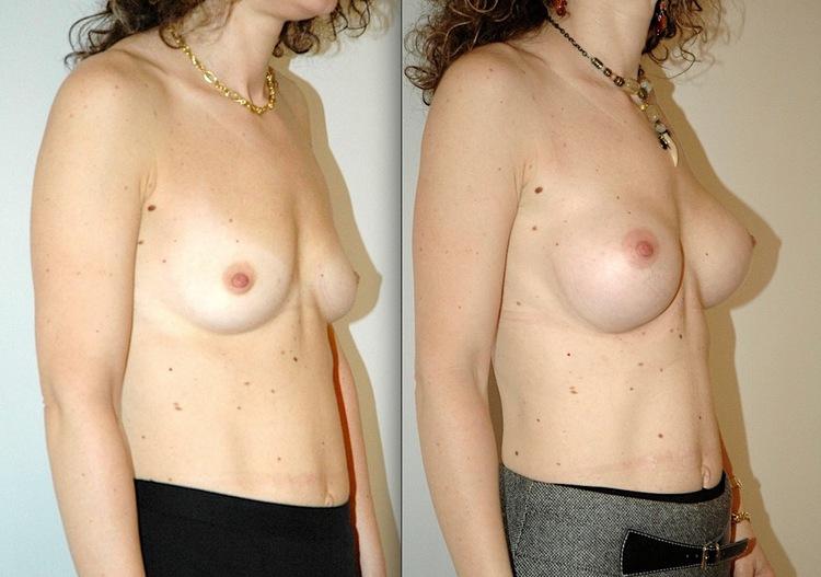 augmentation mammaire avec ventouse, augmentation mammaire avec la graisse du corps, augmentation mmammaire pré pectorale, augmentation mammaire ou aller, implant mammaire ou lipofilling,