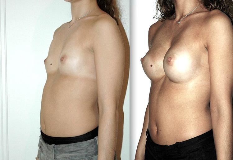 augmentation mammaire drain ou pas, difference augmentation mammaire devant ou derriere le muscle, augmentation mammaire et allaitement,