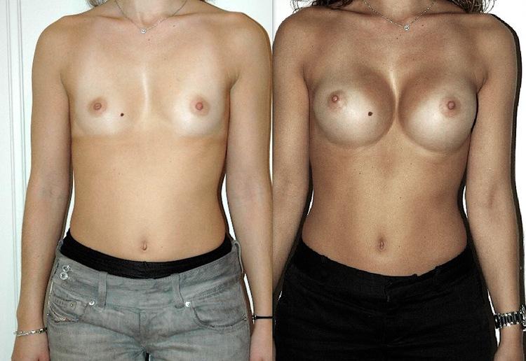 augmentation mammaire et tabac, augmentation mammaire technique, augmentation mammaire solution, augmentation mammaire evolution,