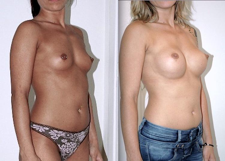 faire une augmentation mammaire, augmentation mammaire comment dormir, pour ou contre augmentation mammaire,