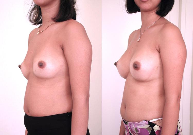 augmentation mammaire technique, augmentation mammaire solution, augmentation mammaire evolution,