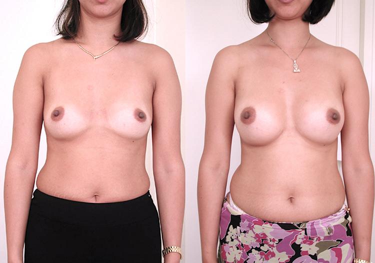 augmentation mammaire sans chirurgie 2020, augmentation mammaire sans drain, augmentation mammaire avec graisse, augmentation mammaire avec graisse avant apres,