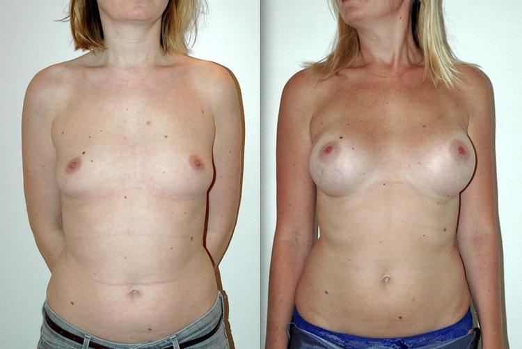 Permet des corrections des défauts ou imperfections des résultats après augmentation par prothèse ou implants par lipomodelage ainsi que Correction asymétries ou déformations.