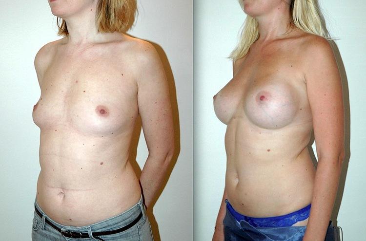Ici Allaitement encore possible alors que non recommandé avec les implants car risque d'engorgement mammaire donc d'infections dangereuses pour les implants.