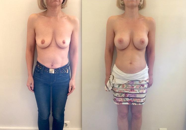 Limitée aux patientes avec réserves de graisses suffisantes et augmentation limitée à un bonnet.