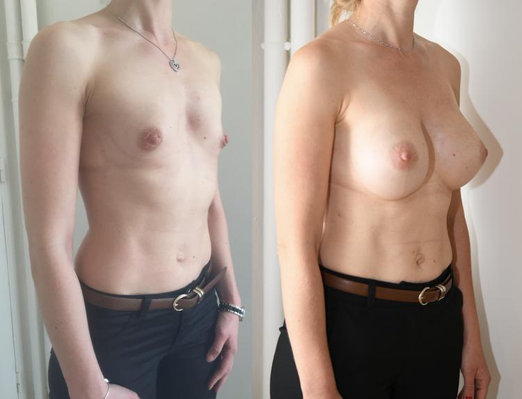 Par une petite canule pour augmenter la taille de vos seins, de votre poitrine sans implants, pour qu'ils soient plus gros, volumineux par lipostructure