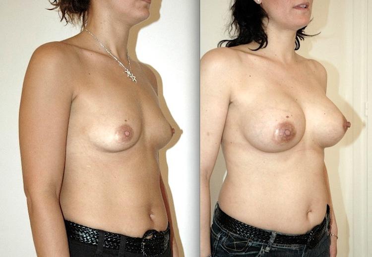 Attention, En cas de ptose, réaliser avant ou pendant l'augmentation mammaire un lifting des seins.