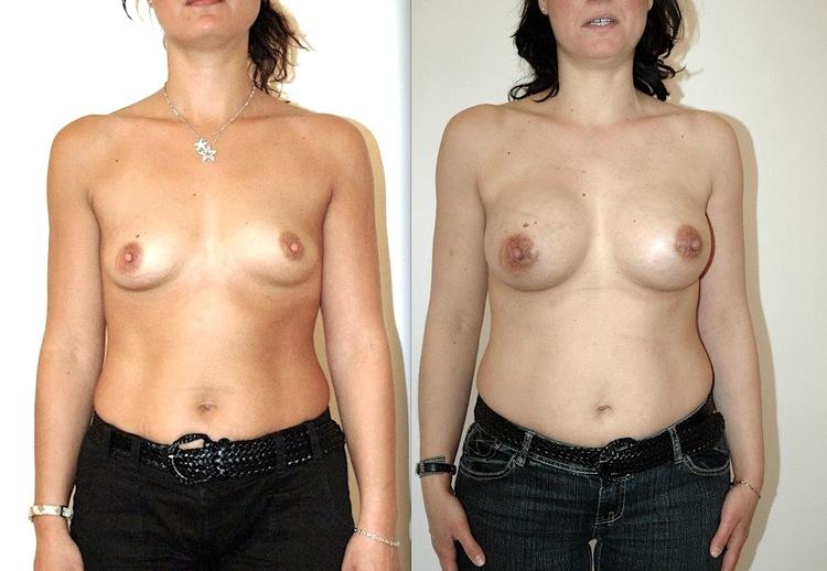 Parfois, ils peuvent corriger des Asymétries mammaires mais aussi entrainer des Imperfections de résultats Voir des Hématomes ou malpositions.