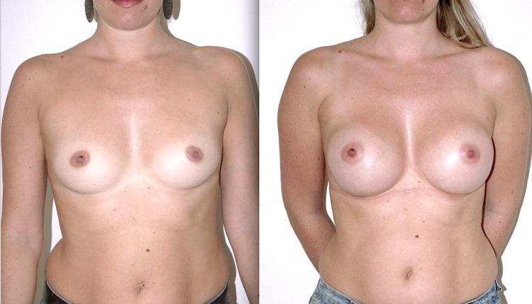 Les meilleurs implants mammaires n'existent pas, avec le temps, la qualité est de plus en plus comparable.