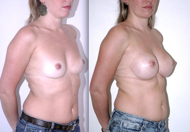 augmentation mammaire implant rond voie axillare