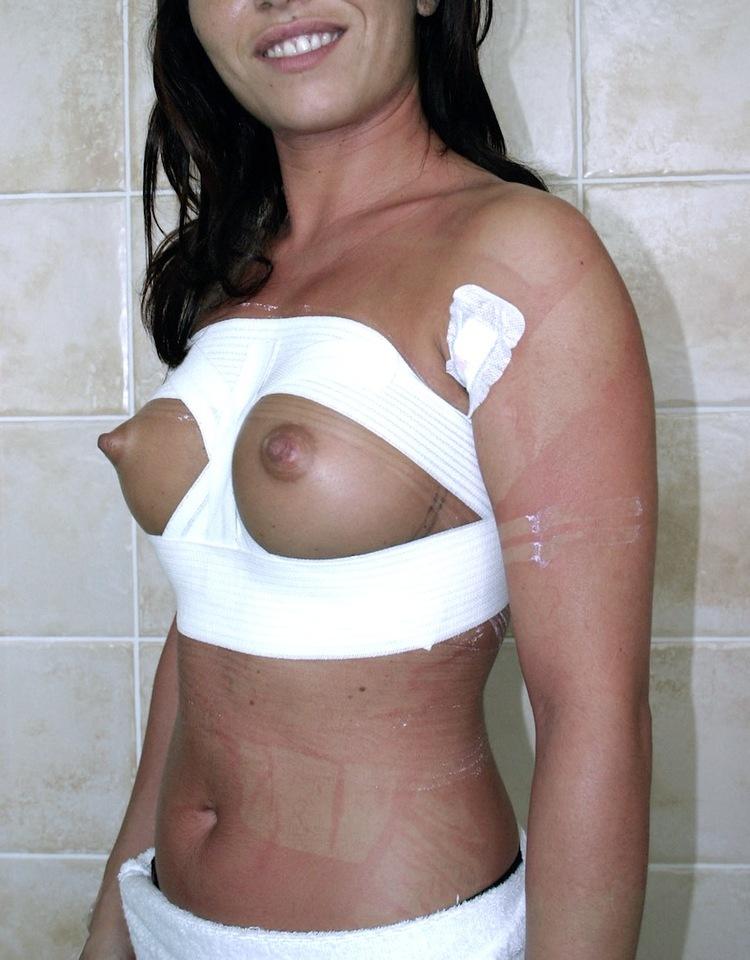 augmentation mammaire et grossesse,