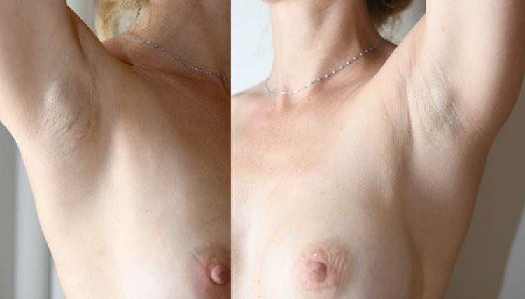 tous les chirurgiens devraoent adopter cette technique par respect pour la poitrine
