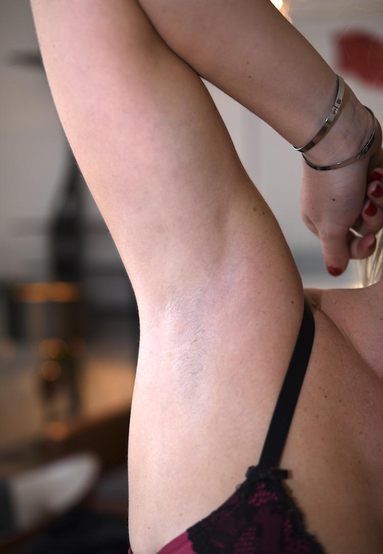 les cicatrices sont invisibles quelque soit le type de peau