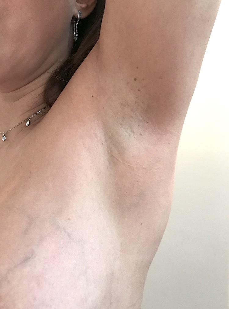 exemple de cicatrice axillaire pour embellir et augmenter la poitrine