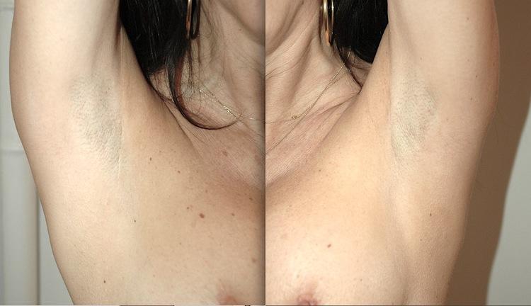 toutes ces cicatrices par aisselle ou axillaire sont invisibles