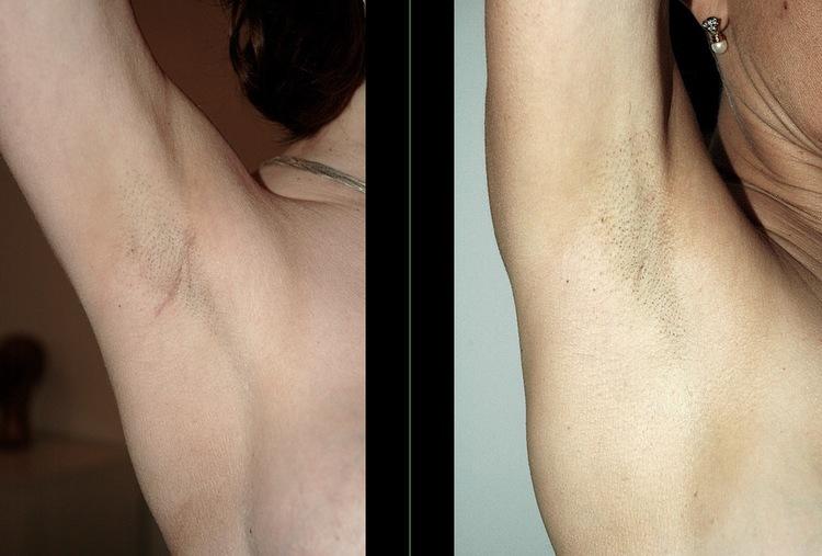 classiquement utilisée pour les implants sous le muscle