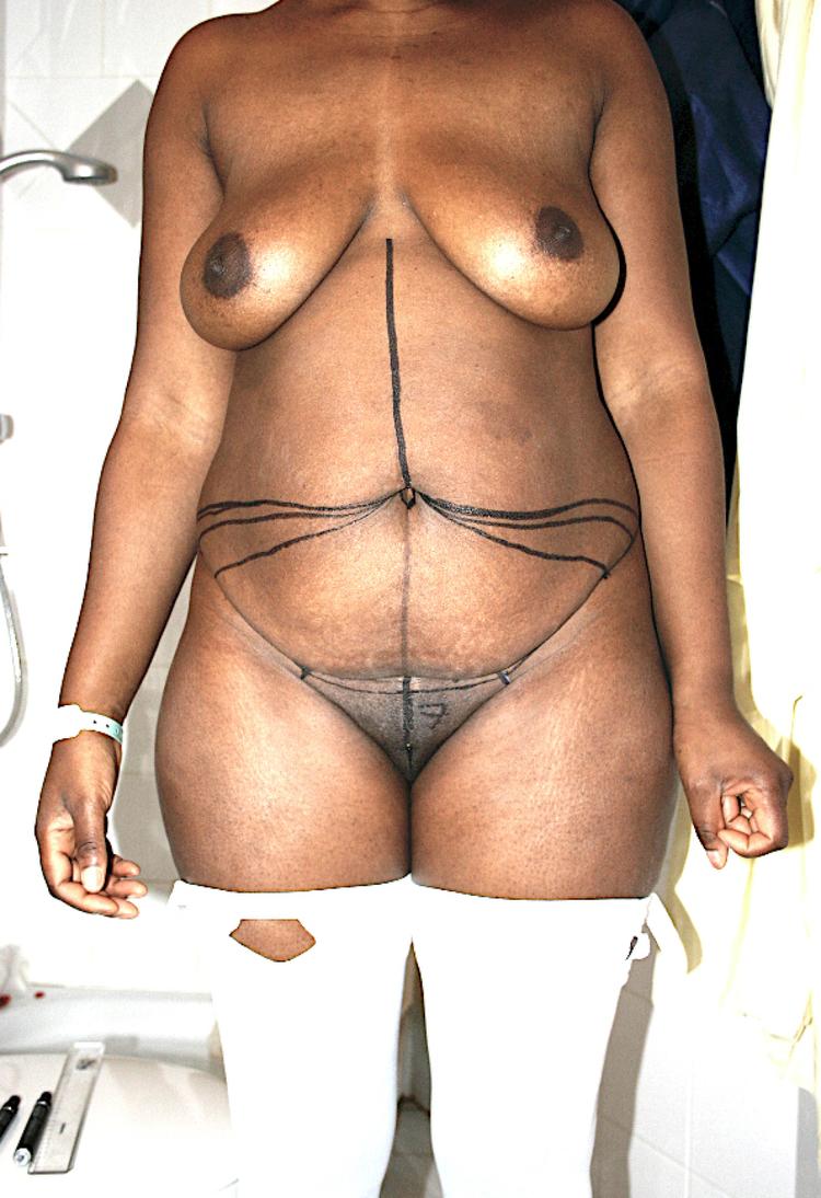 Chirurgie esthétique et réparatrice pour embellissement et rajeunissement abdomen ventre lombes poignées d'amour bourrelets du dos. Indications bien plus efficaces Infiniment plus efficiente sur la peau relâchée du ventre et la graisse que les soins aminc