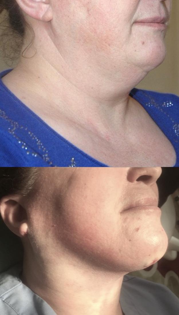 Technique de référence pour sculpter, éliminer, faire disparaitre, traiter un visage et un menton empâté qui vous dérange par la chirurgie esthétique non invasive douce, elle consiste à aspirer la graisse sous anesthésie locale ou générale en ambulatoire,